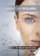 Parasitosis oculares